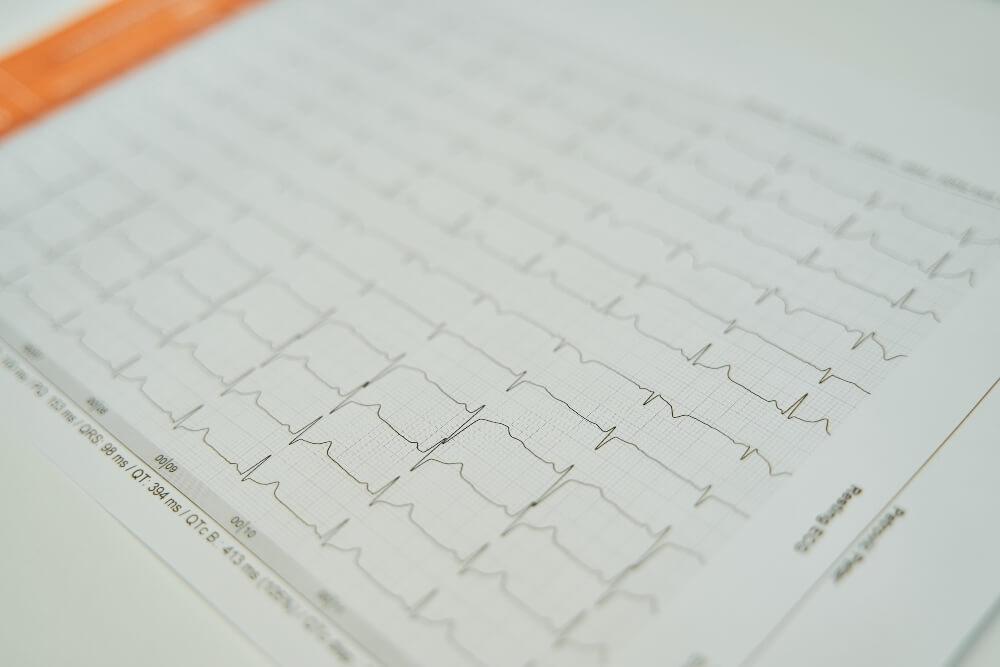 Prikaz otkucaja srca