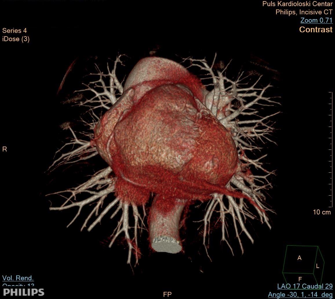 CT Coronarography