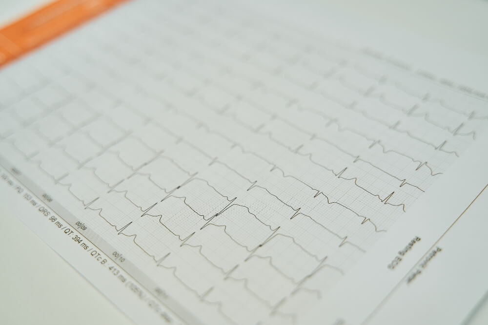 Grafički prikaz reziltata elektrokardiografije