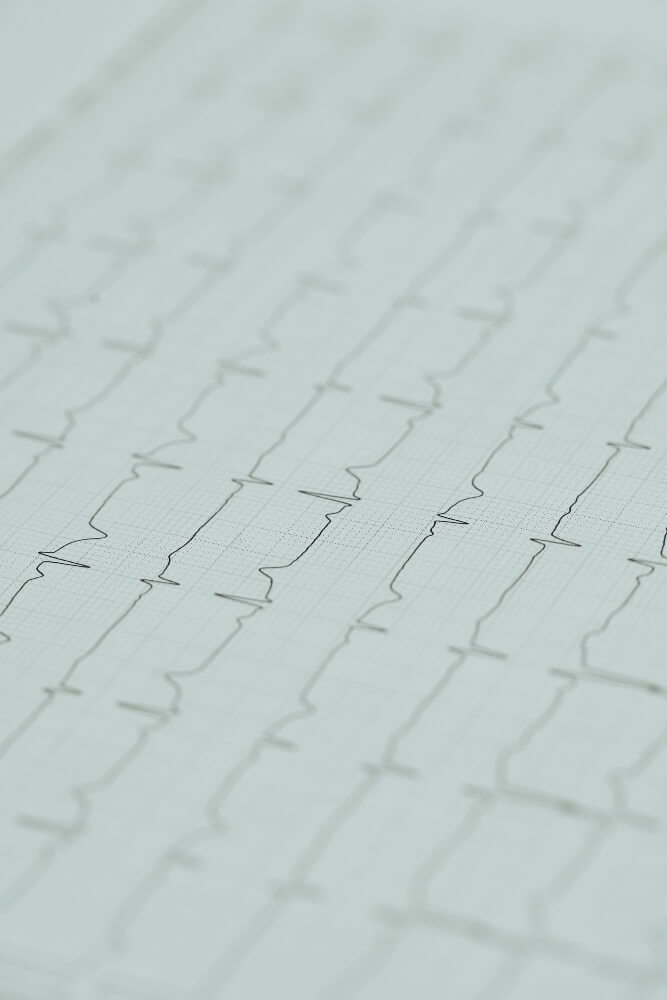 Grafički elektronski prikaz reziltata elektrokardiografije